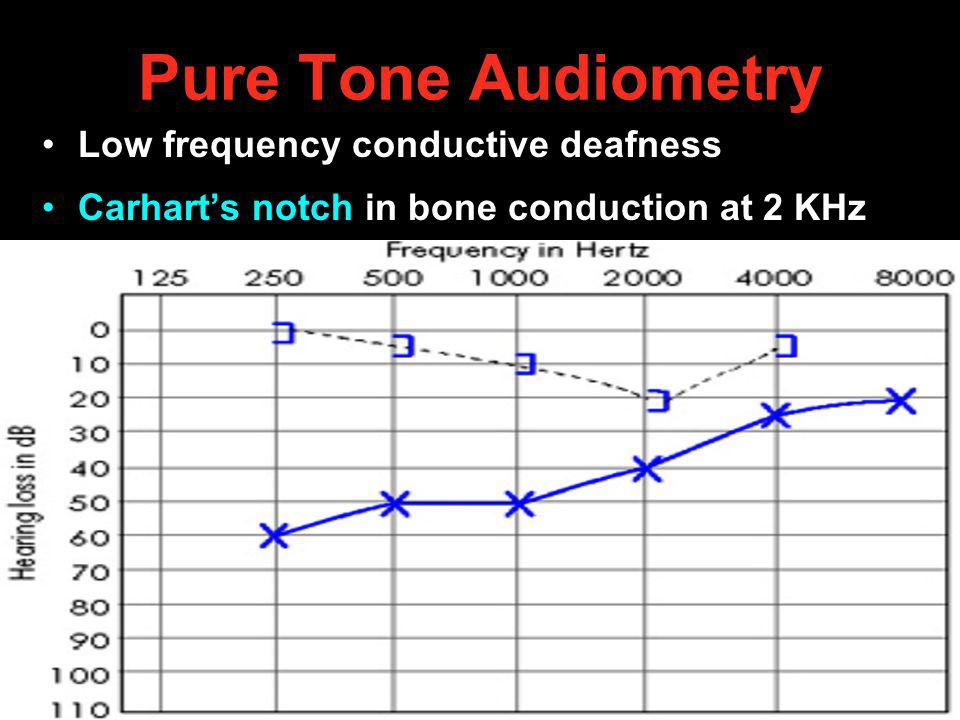 Pure Tone Audiometry Low frequency conductive deafness