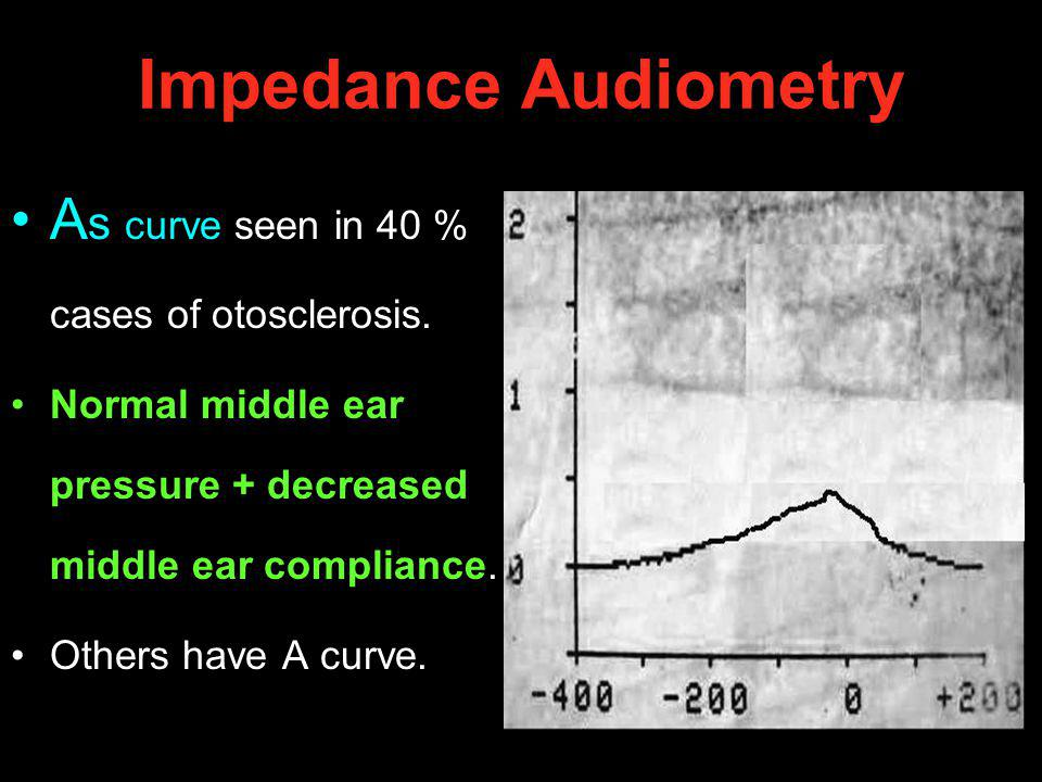 Impedance Audiometry As curve seen in 40 % cases of otosclerosis.