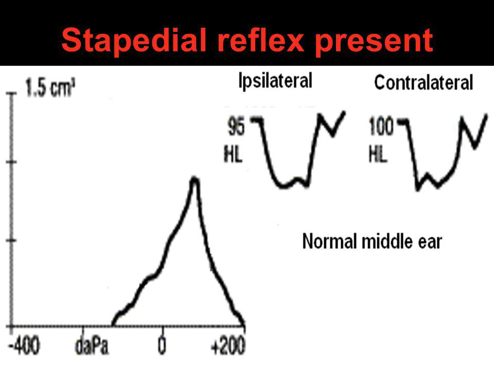 Stapedial reflex present