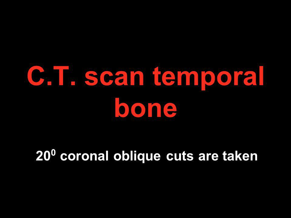 200 coronal oblique cuts are taken
