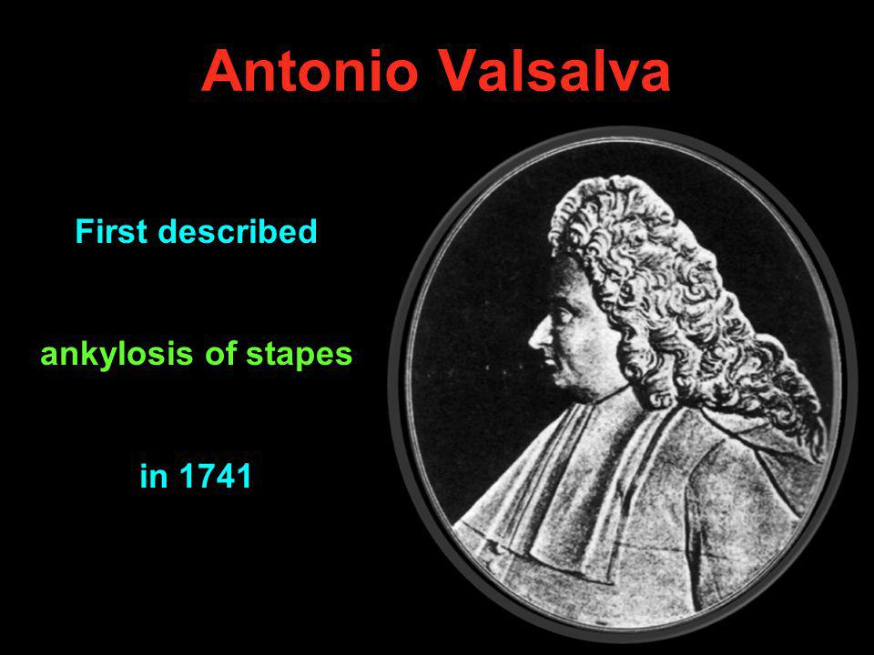 Antonio Valsalva First described ankylosis of stapes in 1741