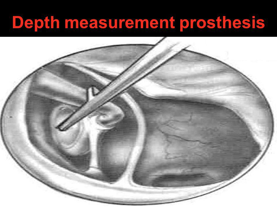 Depth measurement prosthesis