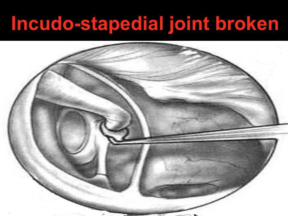 Incudo-stapedial joint broken