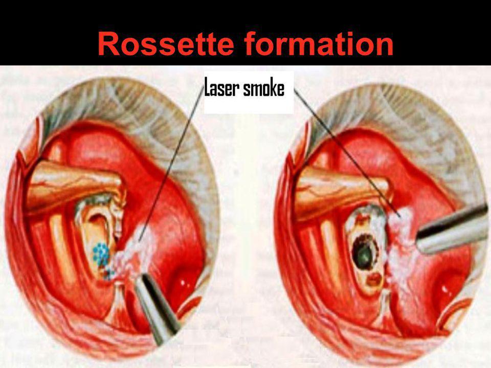 Rossette formation