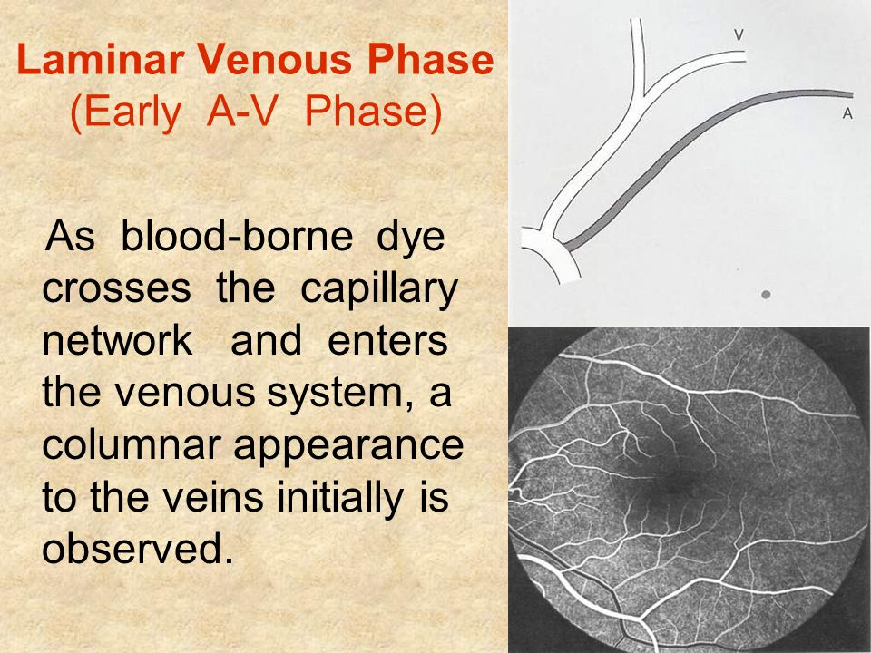 Laminar Venous Phase (Early A-V Phase)