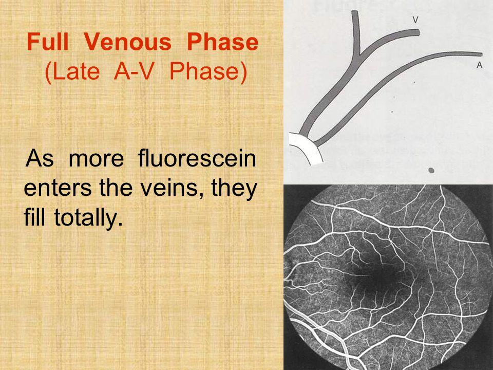 Full Venous Phase (Late A-V Phase)