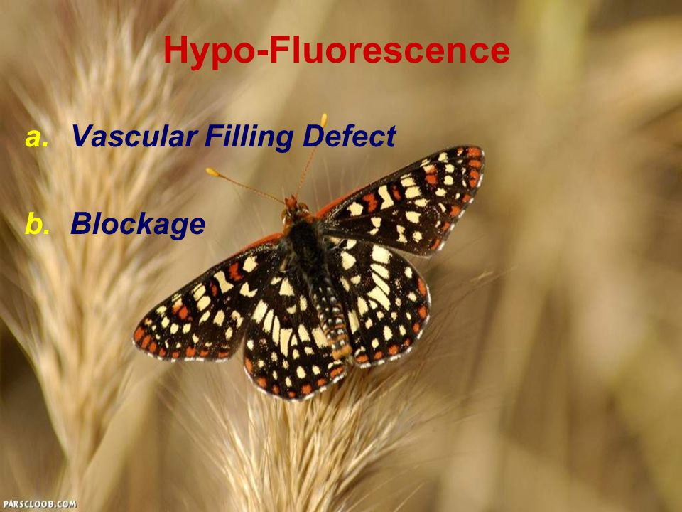 Hypo-Fluorescence Vascular Filling Defect Blockage