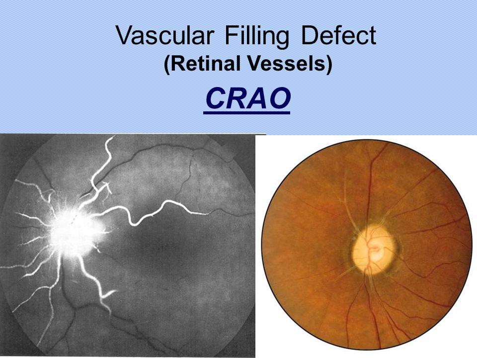 Vascular Filling Defect CRAO