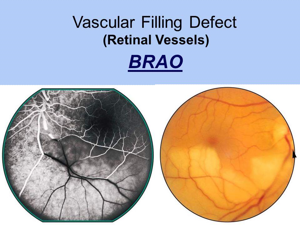 Vascular Filling Defect BRAO