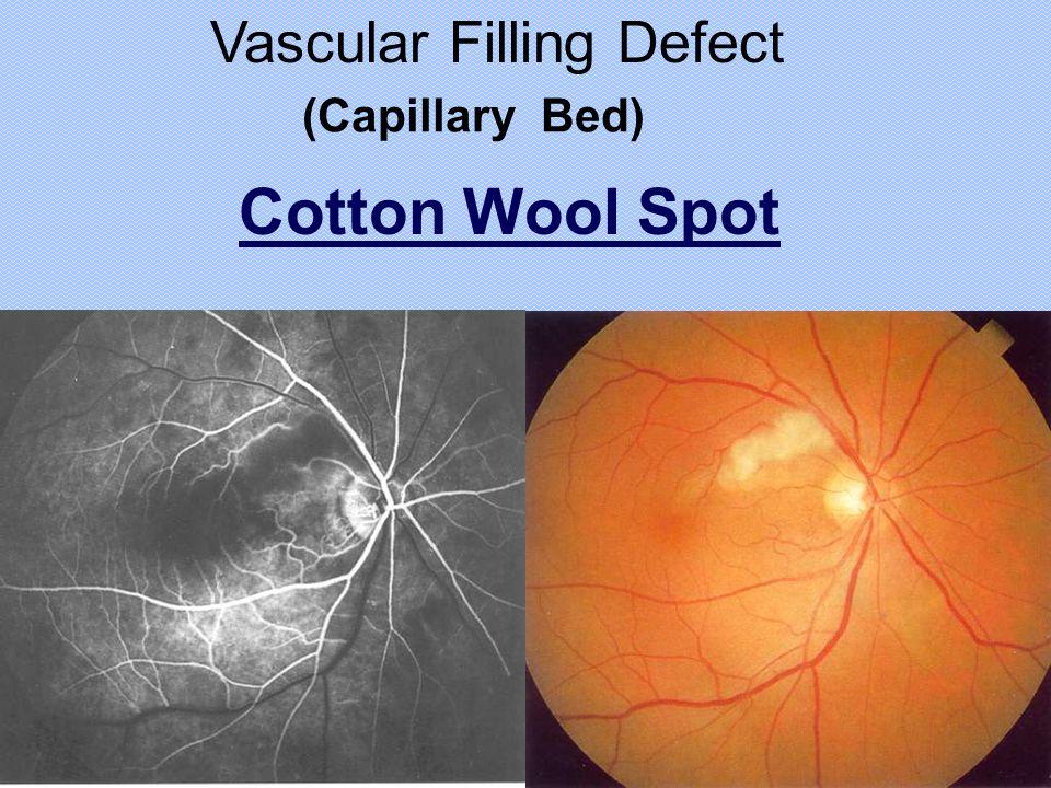 Vascular Filling Defect