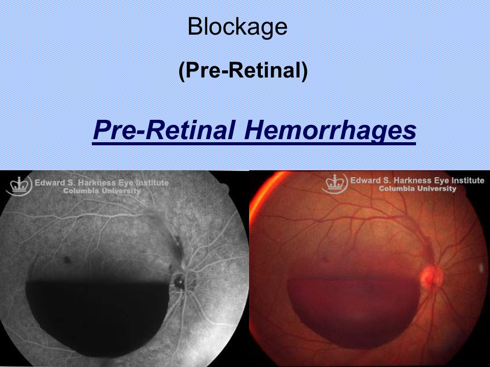 Pre-Retinal Hemorrhages