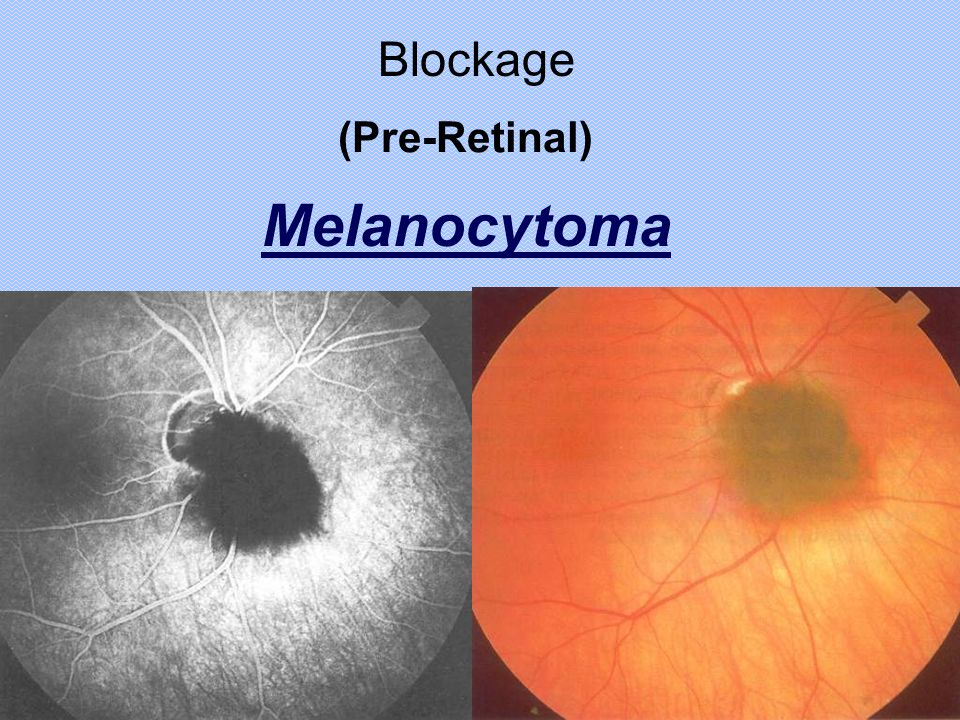 Blockage (Pre-Retinal) Melanocytoma