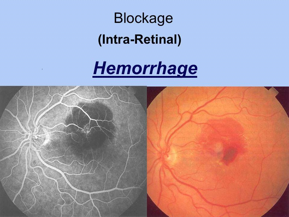 Blockage (Intra-Retinal) Hemorrhage ,