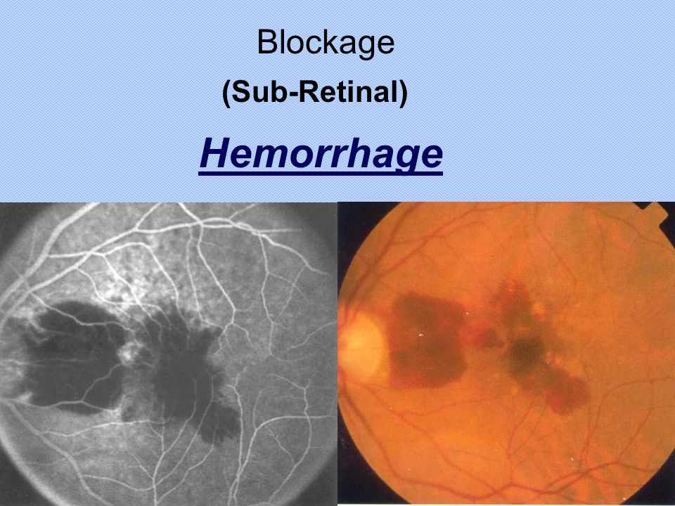 Blockage (Sub-Retinal) Hemorrhage