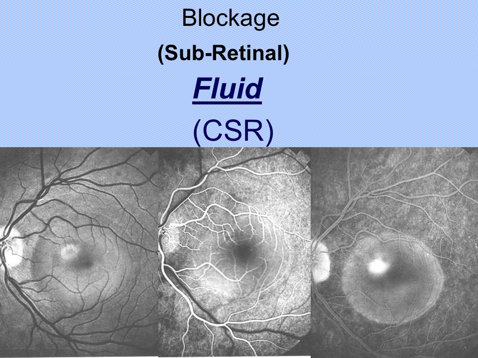 Blockage (Sub-Retinal) Fluid (CSR)