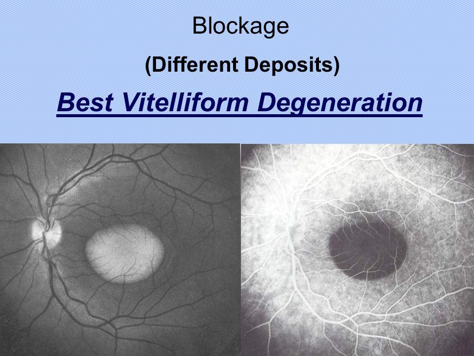 Best Vitelliform Degeneration