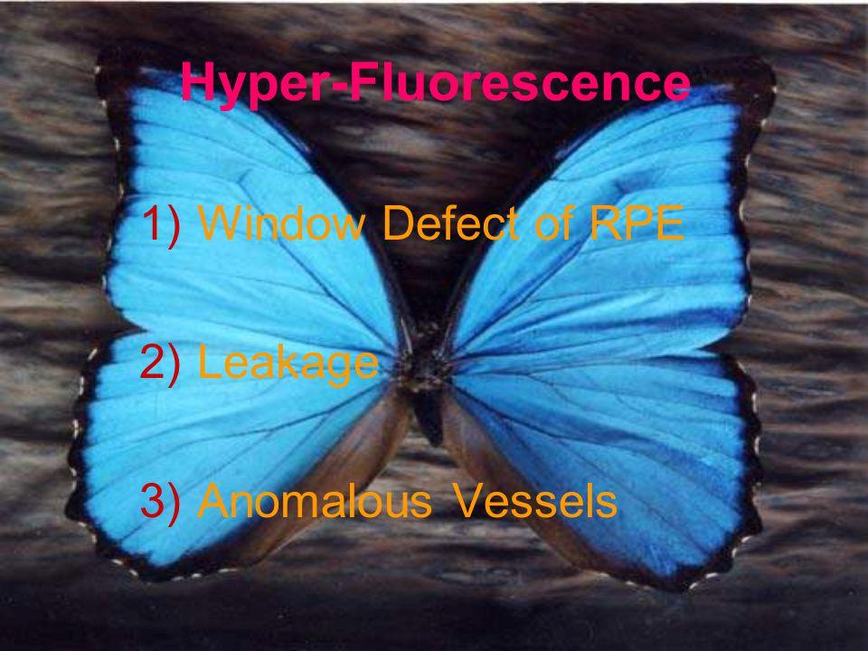 Hyper-Fluorescence Window Defect of RPE Leakage Anomalous Vessels