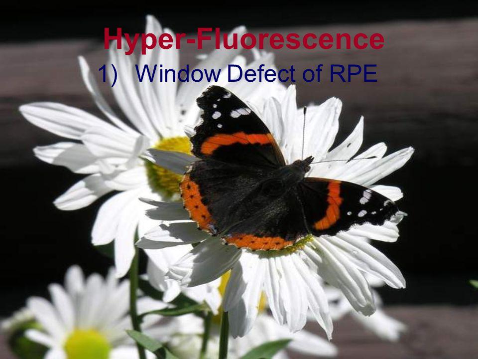 Hyper-Fluorescence Window Defect of RPE