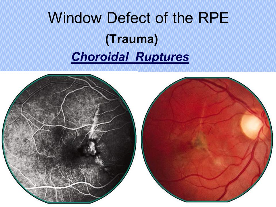 Window Defect of the RPE