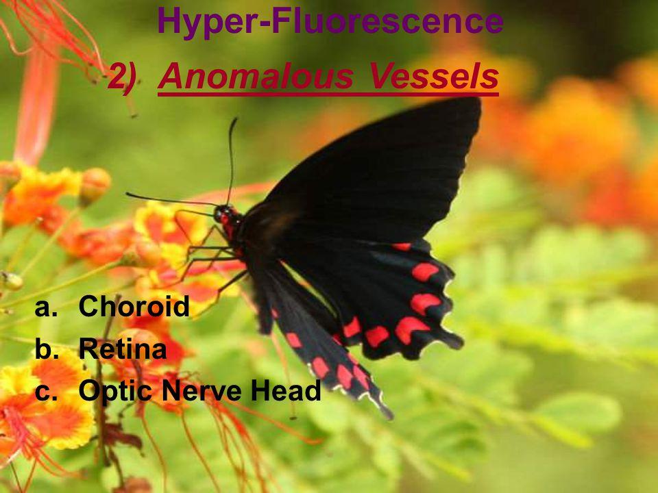 Hyper-Fluorescence Anomalous Vessels Choroid Retina Optic Nerve Head