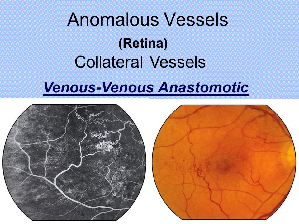 Anomalous Vessels (Retina) Collateral Vessels