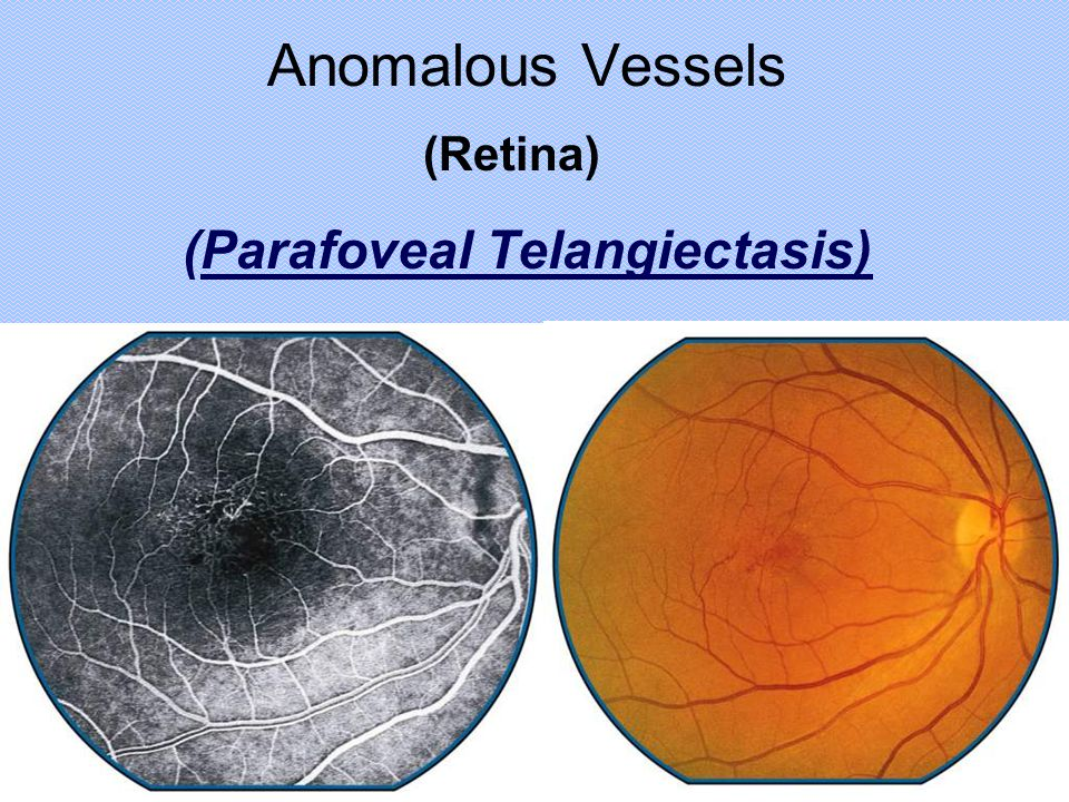 Anomalous Vessels (Retina) (Parafoveal Telangiectasis)
