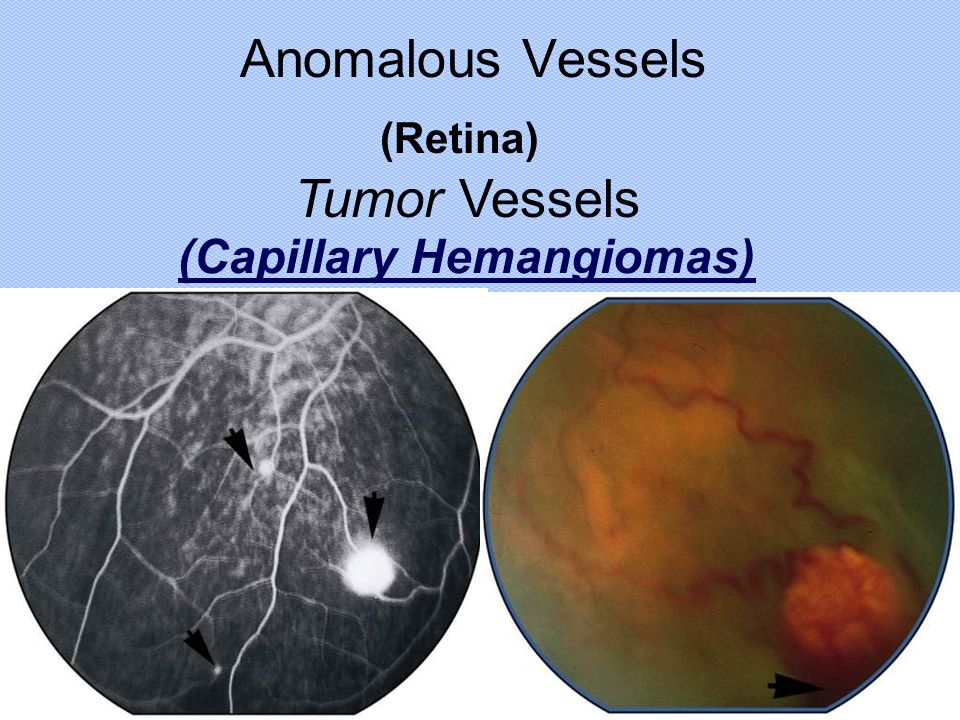 Anomalous Vessels (Retina) Tumor Vessels (Capillary Hemangiomas)