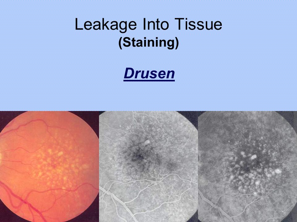 Leakage Into Tissue (Staining)