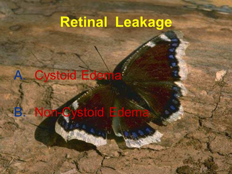 Retinal Leakage Cystoid Edema Non-Cystoid Edema