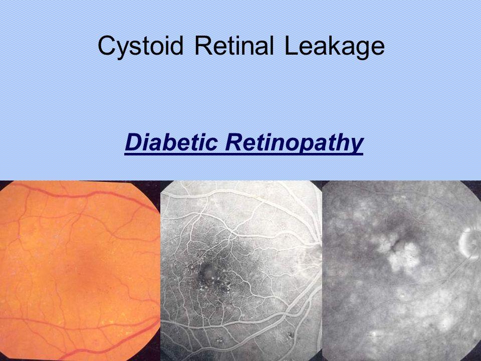 Cystoid Retinal Leakage