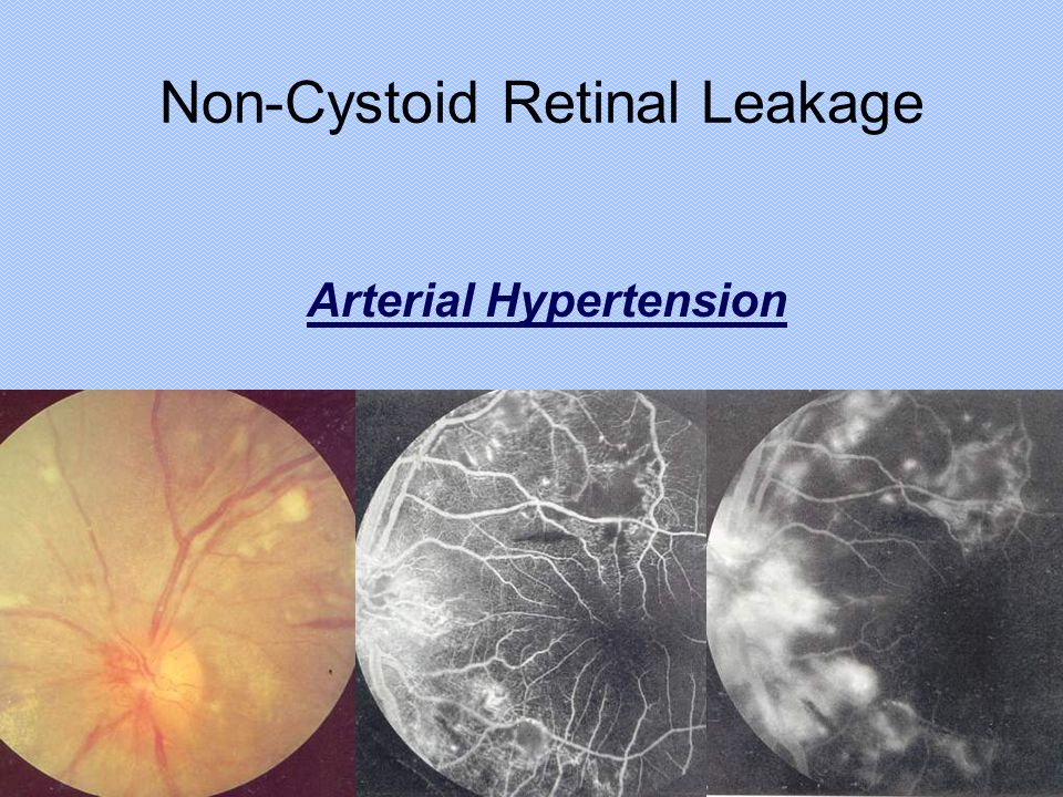 Non-Cystoid Retinal Leakage