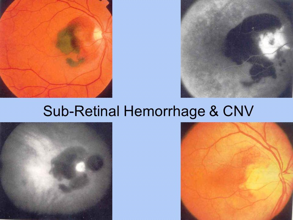Sub-Retinal Hemorrhage & CNV