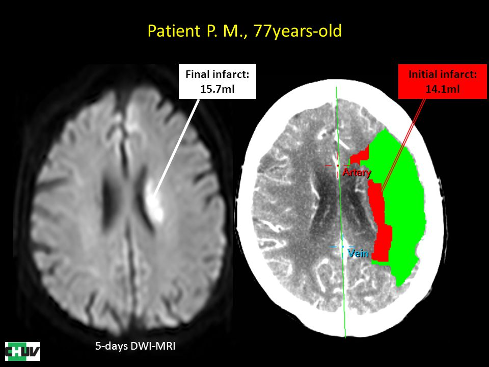 Patient P. M., 77years-old Final infarct: 15.7ml