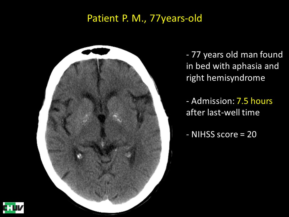 Patient P. M., 77years-old 77 years old man found in bed with aphasia and right hemisyndrome. Admission: 7.5 hours after last-well time.