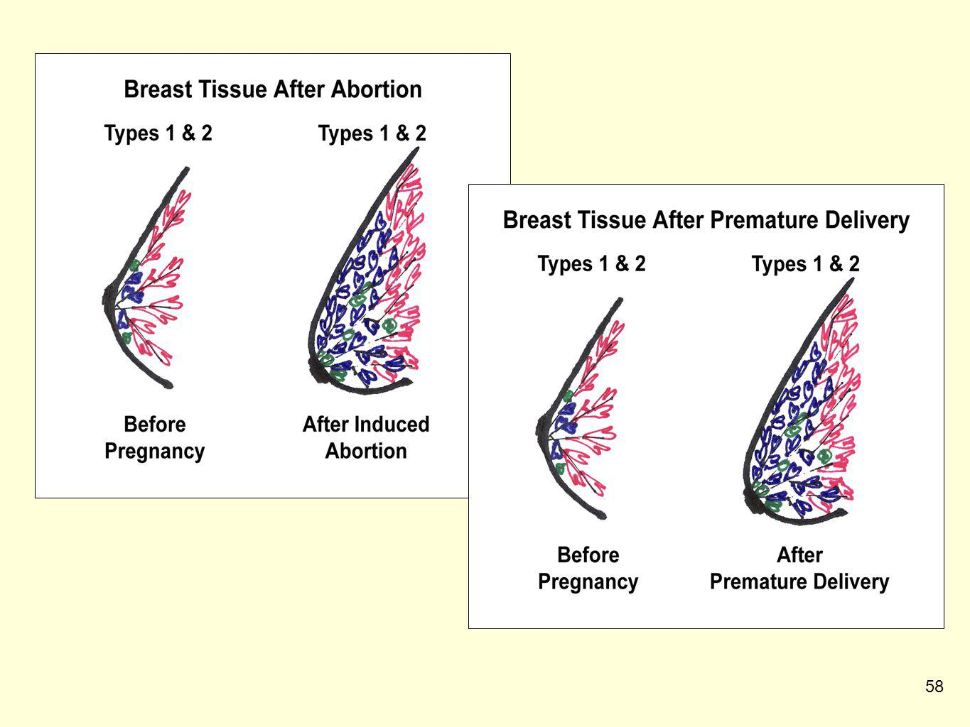 The breasts after an abortion are structurally the same as the breasts after premature delivery (before 32 weeks gestation). In both cases, the woman is left with more places in her breasts for cancers to start. The hormonal changes to the breasts are identical.