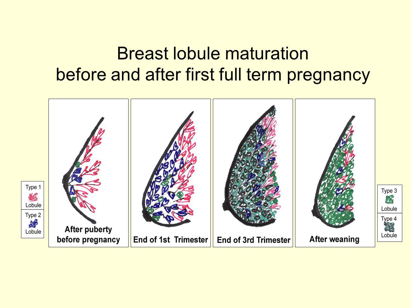 Breast lobule maturation before and after first full term pregnancy