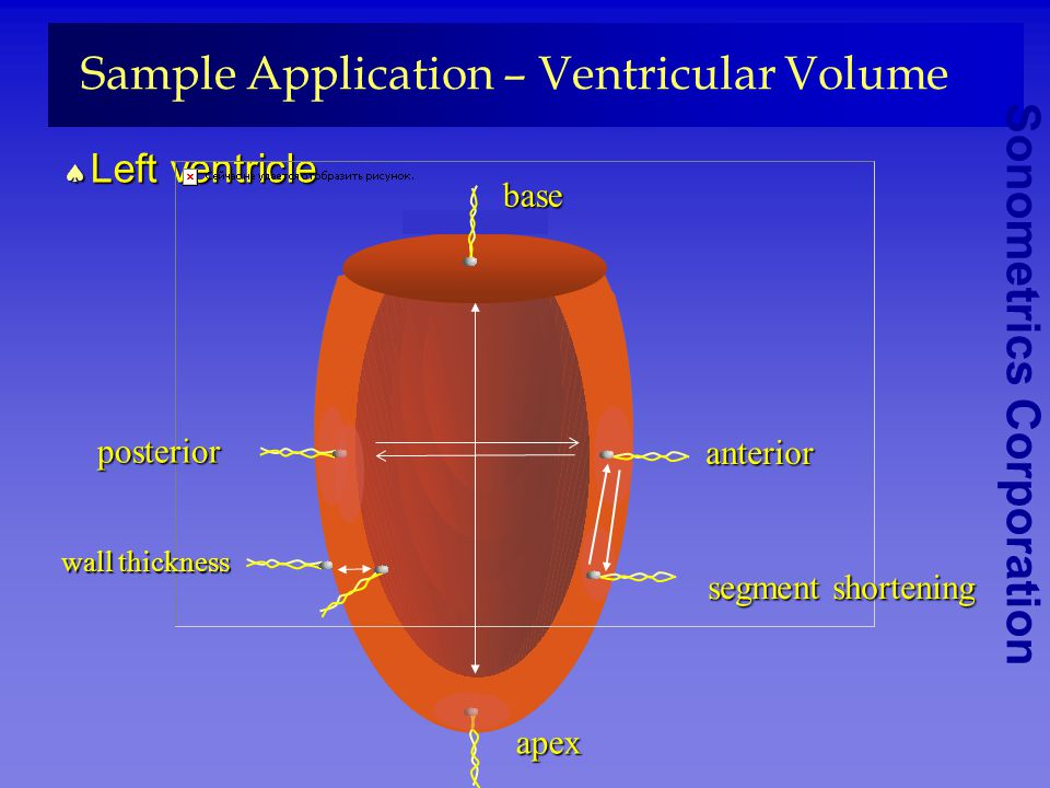 Sample Application – Ventricular Volume