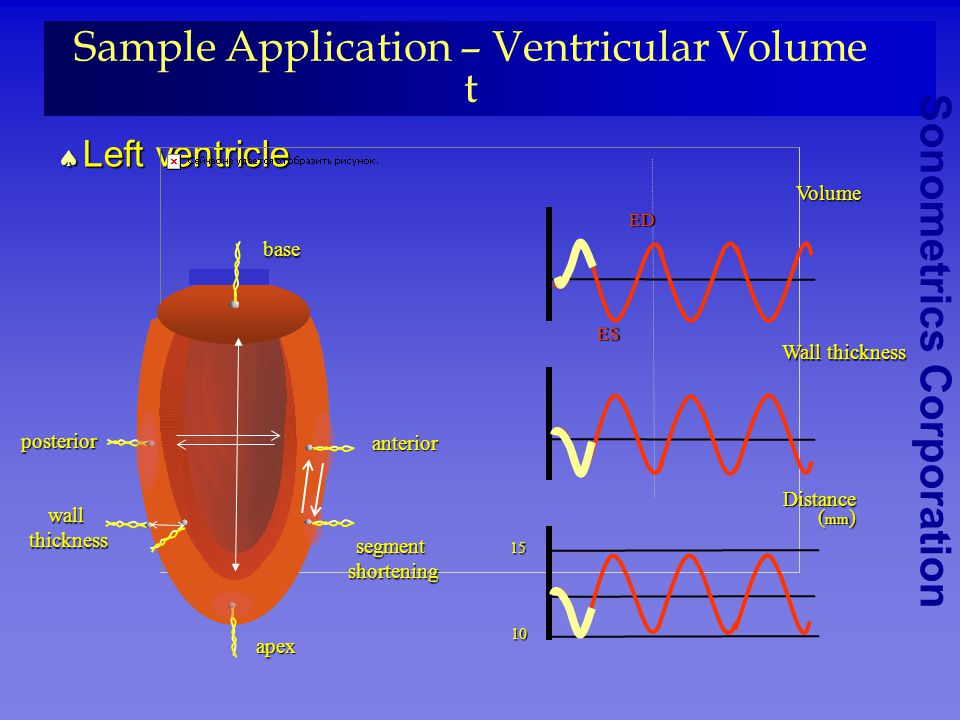 Sample Application – Ventricular Volume t