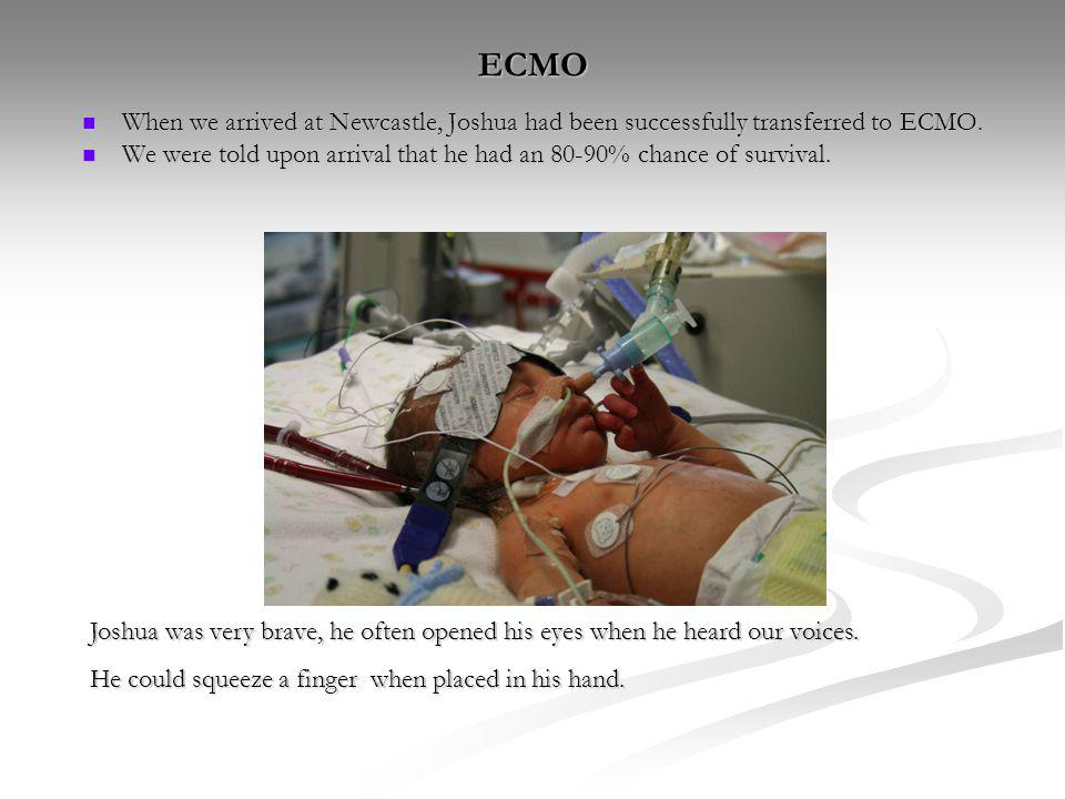 ECMO When we arrived at Newcastle, Joshua had been successfully transferred to ECMO.