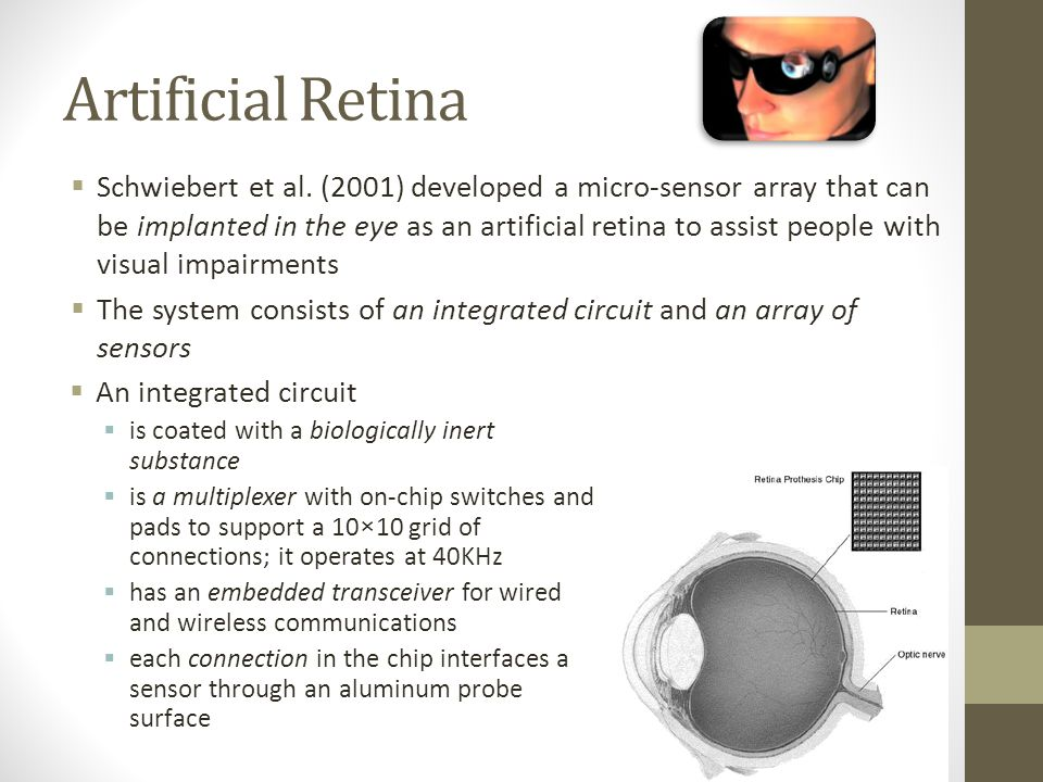 Artificial Retina