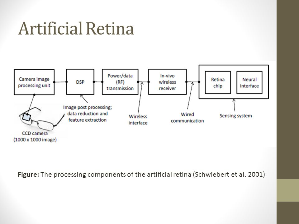 Artificial Retina Figure: The processing components of the artificial retina (Schwiebert et al.