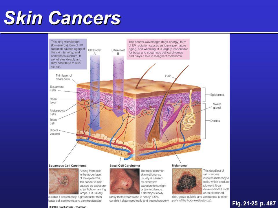 Skin Cancers Fig. 21-25 p. 487