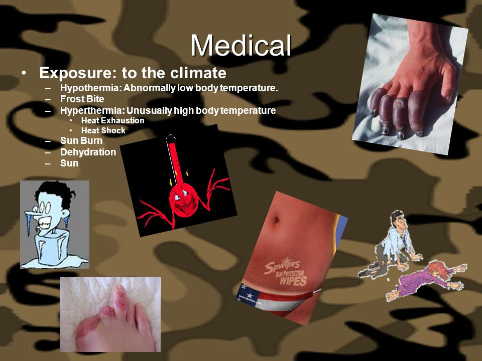 Medical Exposure: to the climate