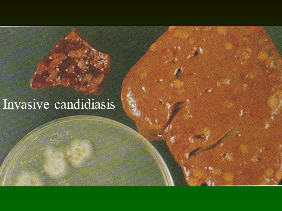 Invasive candidiasis