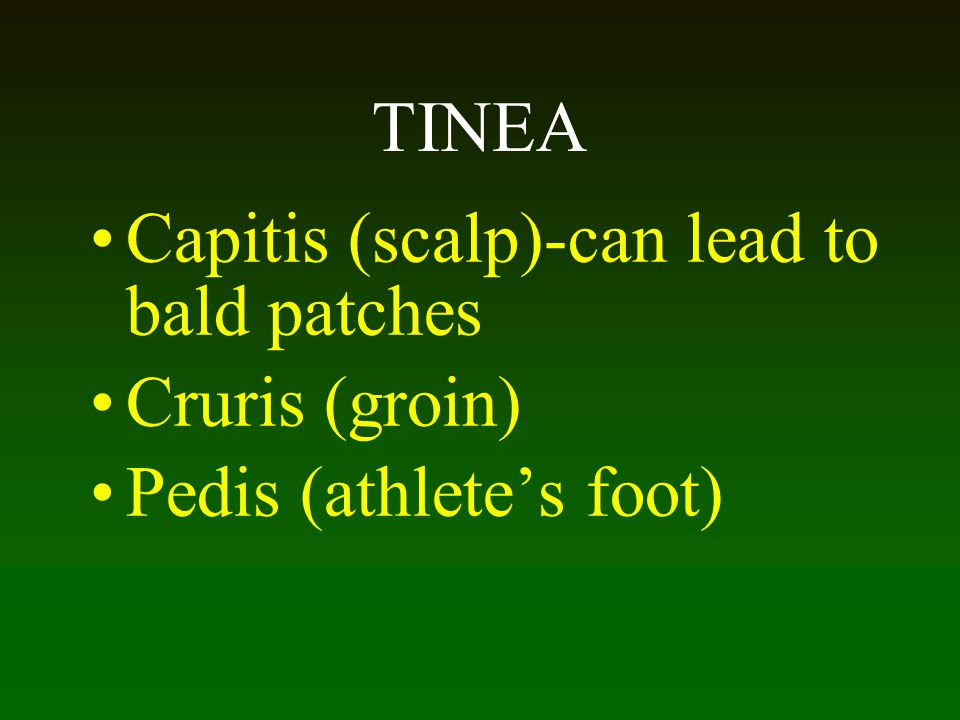 Capitis (scalp)-can lead to bald patches Cruris (groin)
