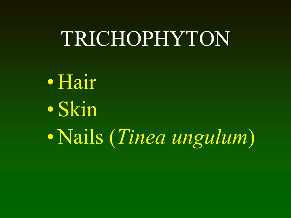 TRICHOPHYTON Hair Skin Nails (Tinea ungulum) 56