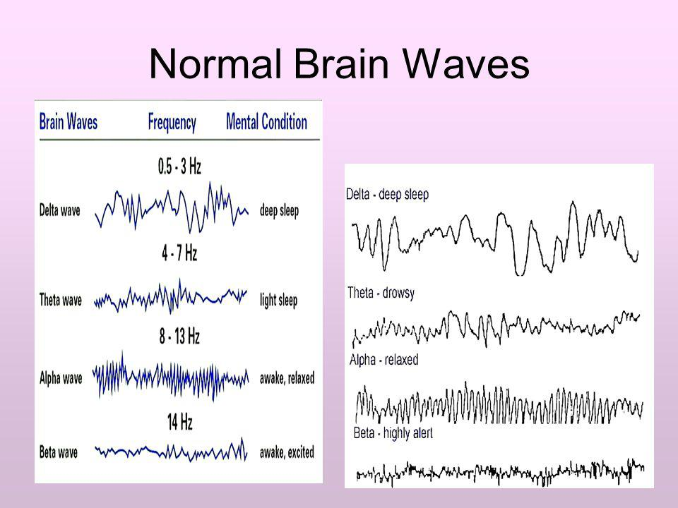 Normal Brain Waves