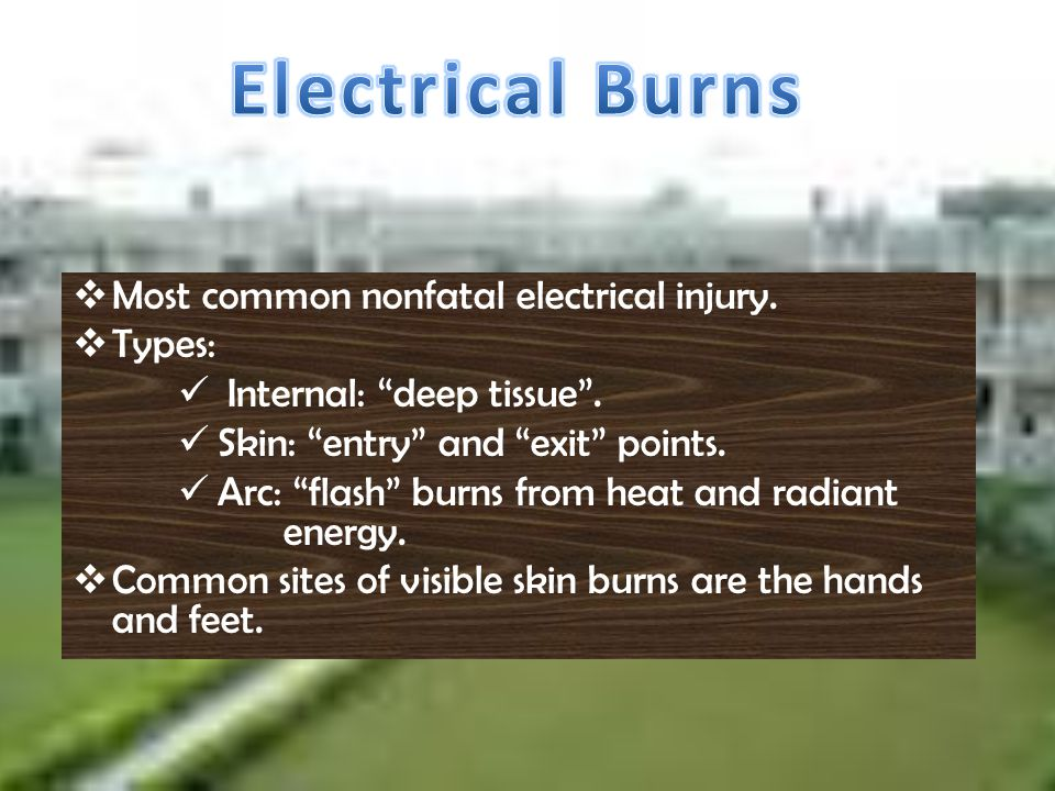 Electrical Burns Most common nonfatal electrical injury. Types: