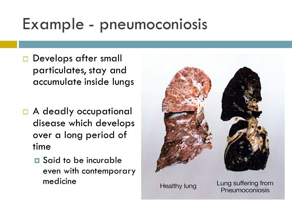 Example - pneumoconiosis