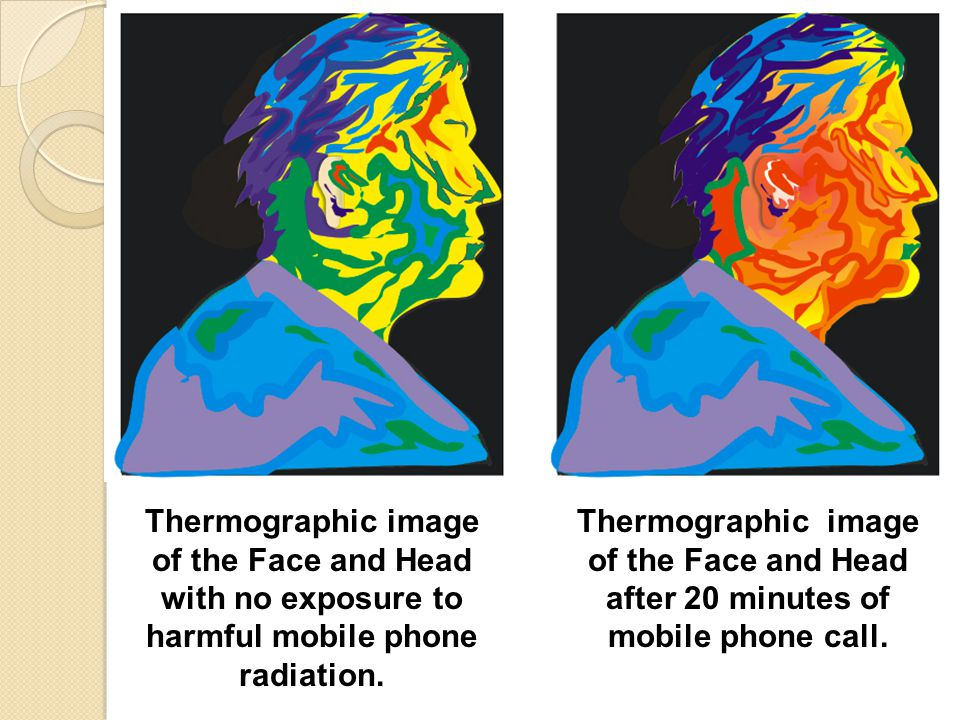 Thermographic image of the Face and Head with no exposure to harmful mobile phone radiation.